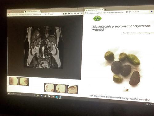 Zdrowie - moje doświadczenie - ramante.pl
